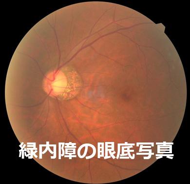 緑内障の眼底写真